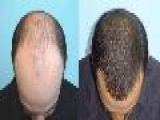 Hair Loss Treatment For Men Www.hairlosstreatmentformen.co.uk