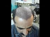 Hair Transplant In Pakistan,Hair Transplant