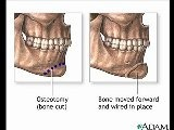Tips That Is Related To Chin Augmentation