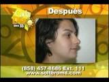 Rinoplastia O Cirugia U Operacion De Nariz Por El Cirujano Plastico Ron Soltero