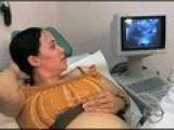 Octo-mom Birth Video. Exclusive